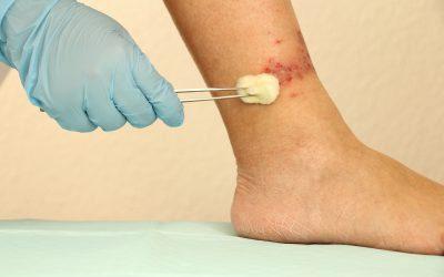 Topical Cannabis-Based Medicines – Novel Adjuvant Treatment for Venous Leg Ulcers